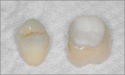 Couronne dentaire sans métal Paris 15