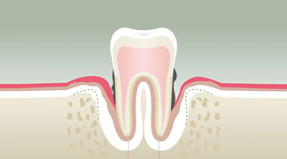 Parodontologie & Hygiène Paris 15